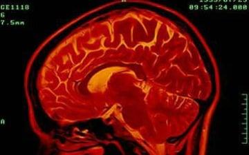 Brain-Image-Mashable