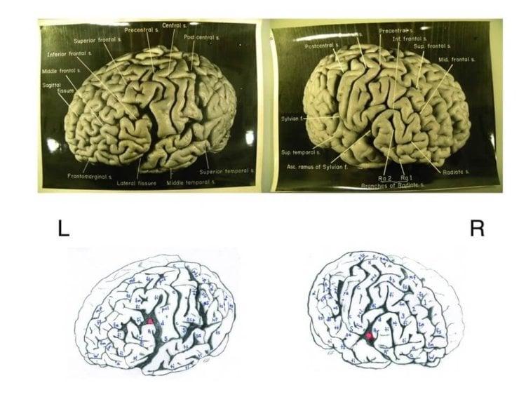 мозг эйншт