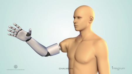 mind-prosthetic