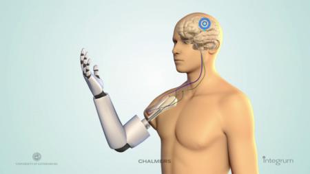 mind-prosthetic-7
