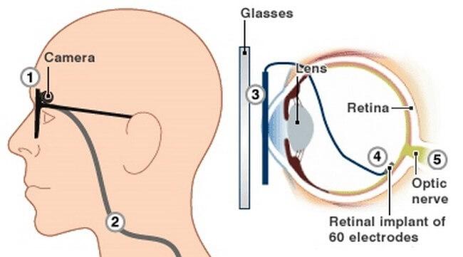 Artificial_retina