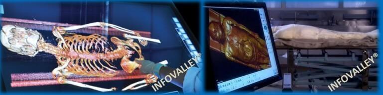 digital-autopsies-11