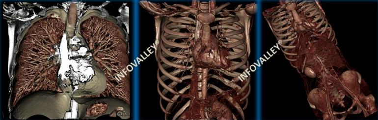 digital-autopsies-12