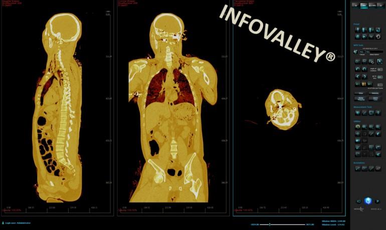 digital-autopsies-9