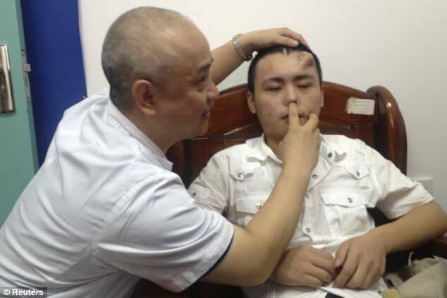 Человеку вырастили новый нос на лбу