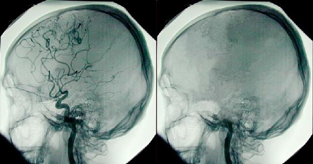 Когда наступает смерть мозга, все неврологические функции необратимо прекращаются