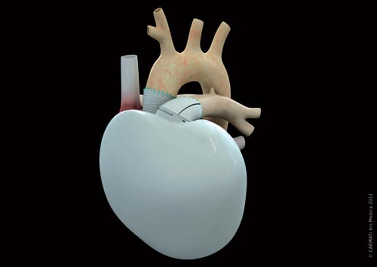 Artificial-Heart