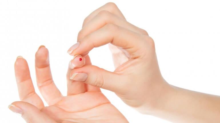 Ученые получили стволовые клетки из капли крови
