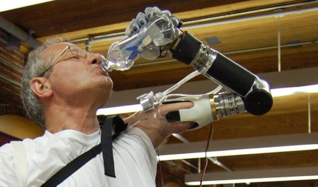 Роботизированный протез DEKA Luke