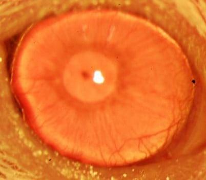 cornea-stem-cells-2
