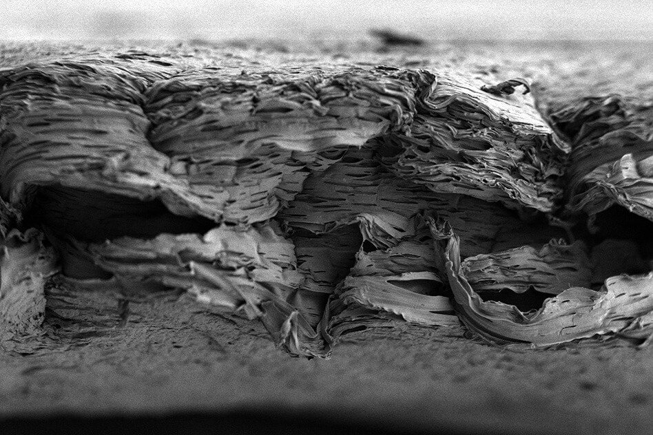 Создан полимер для ускорения роста костей