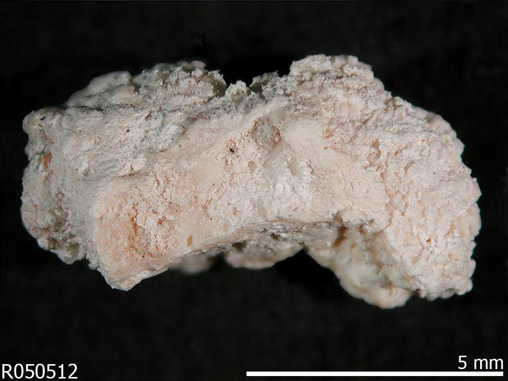 Hydroxyapatite
