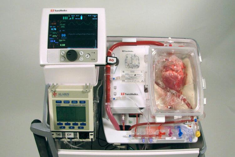 Сердце для пересадки