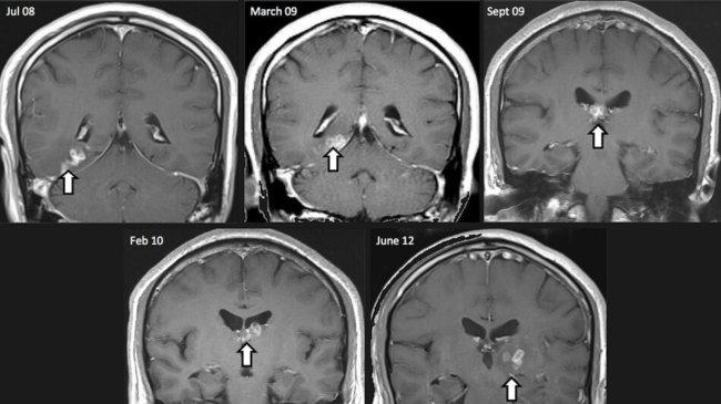 Червь в мозге
