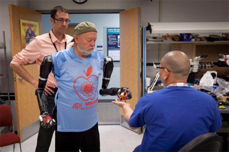 Роботизированный протез рук