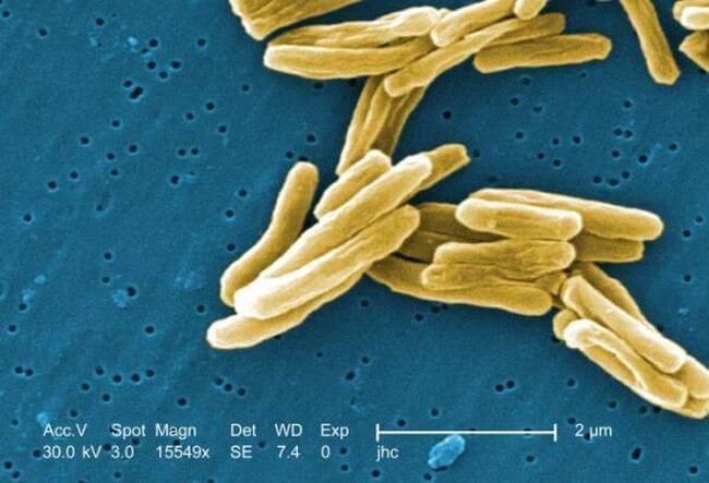 Новый антибиотик способен убивать лекарственно-устойчивые бактерии