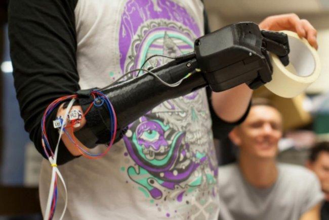 Bionic-Hand3