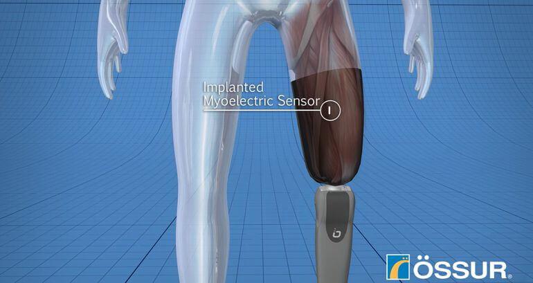 Протезы ног упрвляются подсознательно