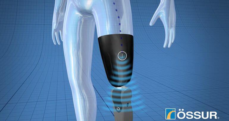 ossur-mind-control-limb
