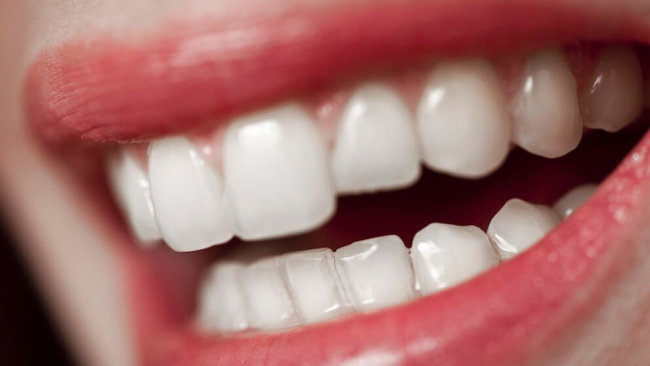 Учёные наделили зубные имплантаты антибактериальными свойствами