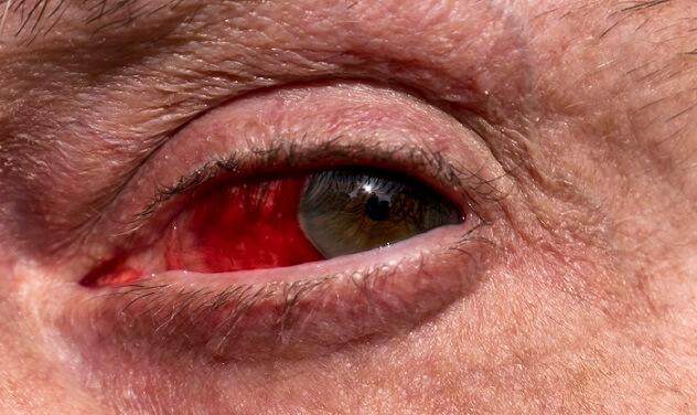 Зараженный глаз