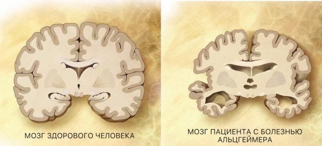 Мозг здорового человека и пациента с болезнью Альцгеймера