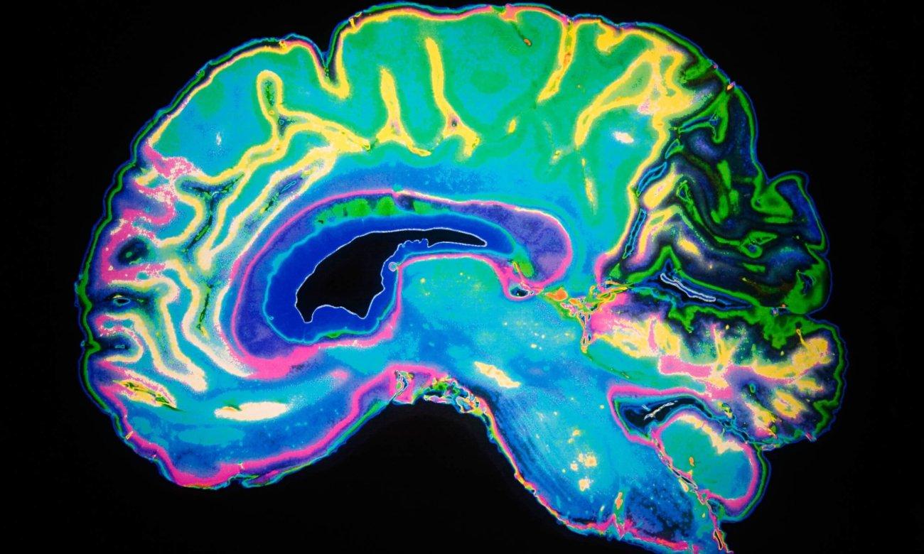 Сон после травмы мозга способен защитить мозг