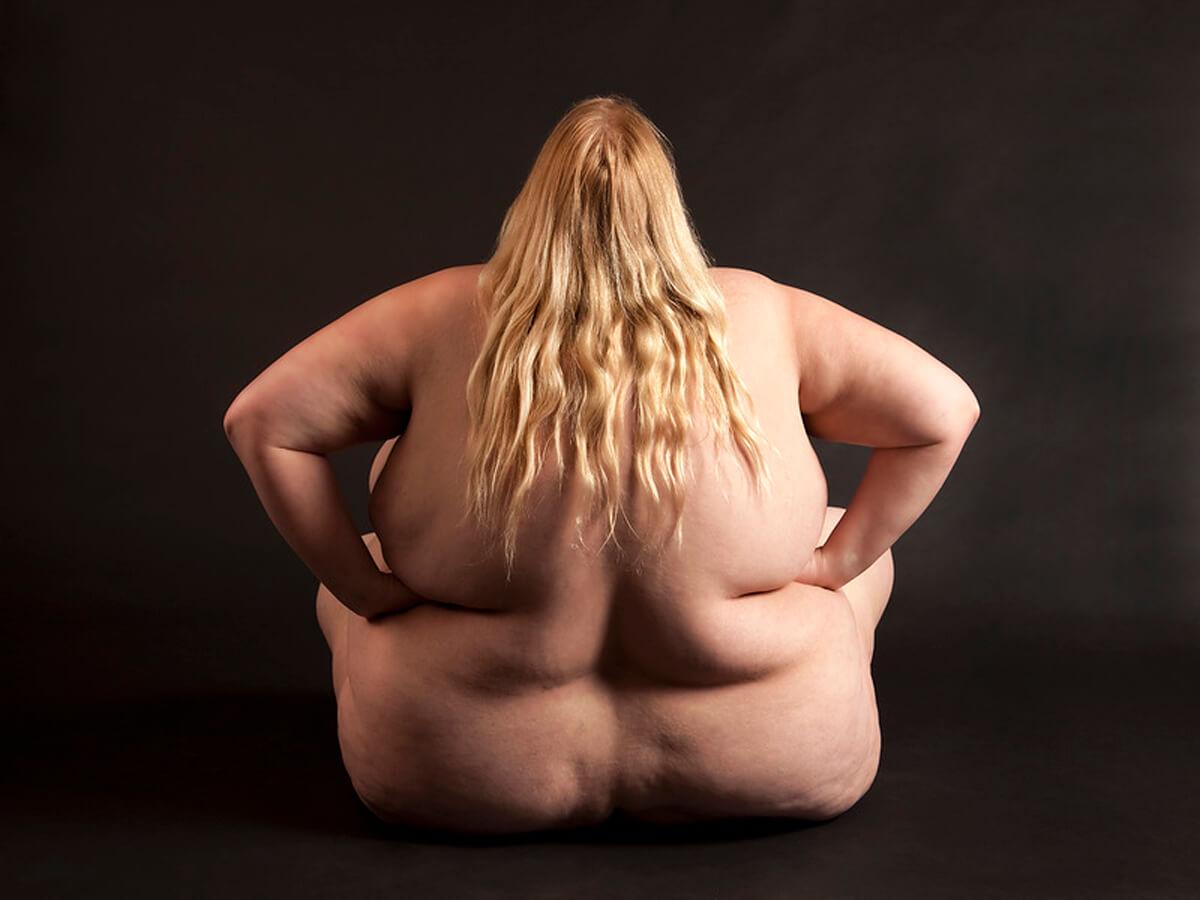 Ожирение — залог долголетия