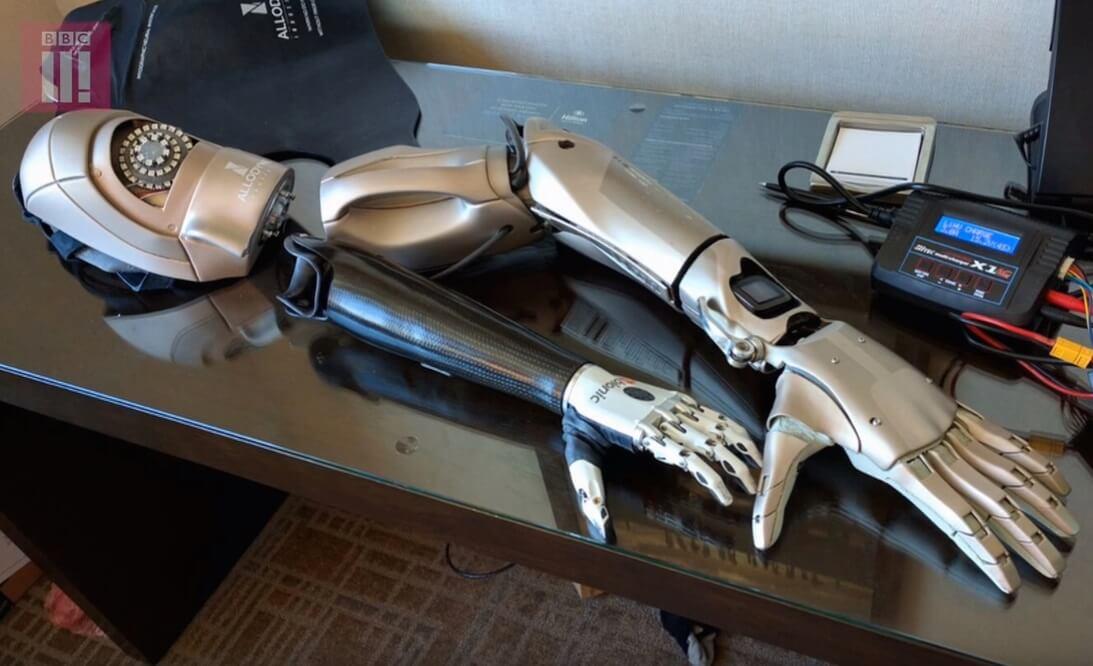Фанату-инвалиду подарили протез руки из Metal Gear Solid V