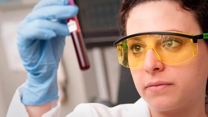 blood-test-alzheimers