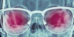 Рентгеновские очки