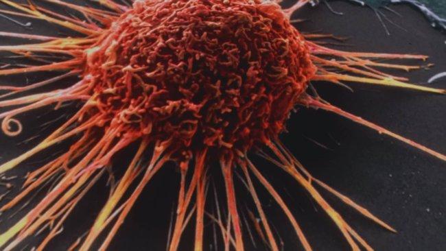 Искусственный интеллект вылечит рак