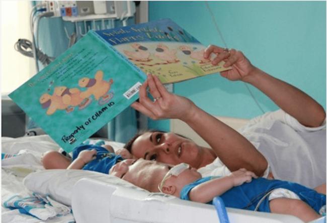 В США готовы провести операцию на близнецах, сросшихся головами