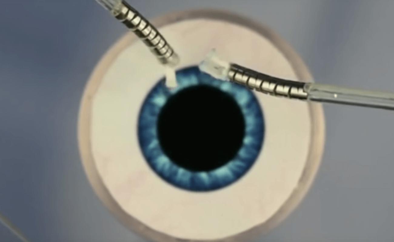 Робот-микрохирург  поможет с операциями на глаза