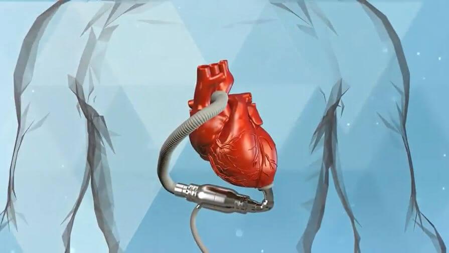 Зеленоградские учёные создали  систему вспомогательного  кровообращения