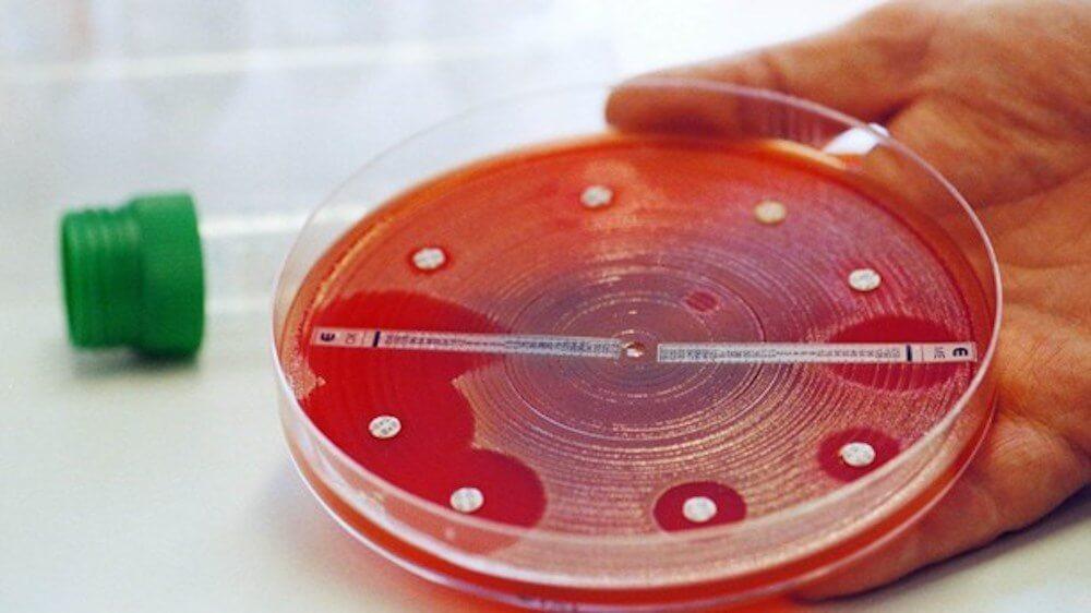 Бактерии выработали устойчивость к антибиотикам
