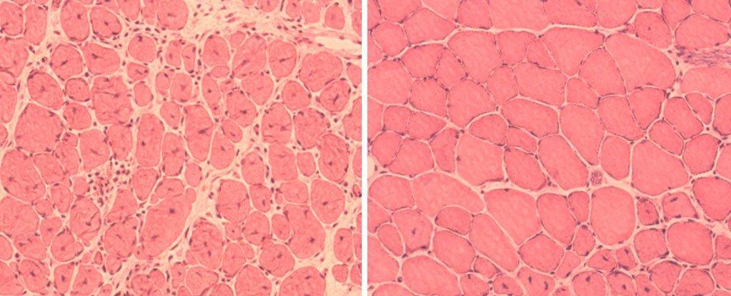 Ученые впервые омолодили целое животное стволовыми клетками