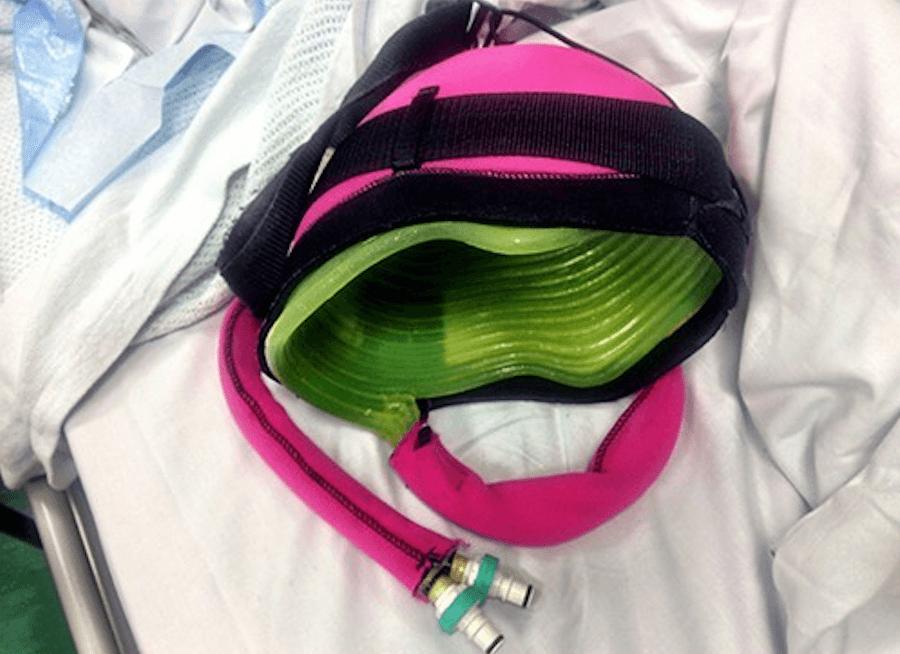 Создан охлаждающий шлем, который спасет от потери волос при химиотерапии (2 фото)