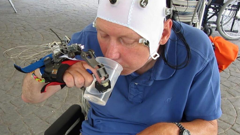 Роботизированная рука поможет парализованным людям