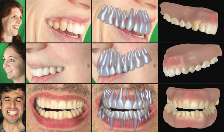 Специалисты Disney научились делать слепки зубов по фотографиям