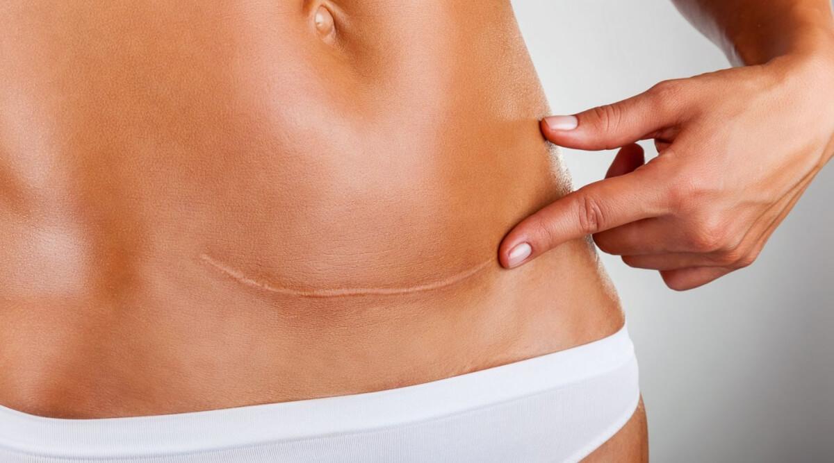 Ученые обнаружили способ регенерации кожи без шрамов (2 фото)