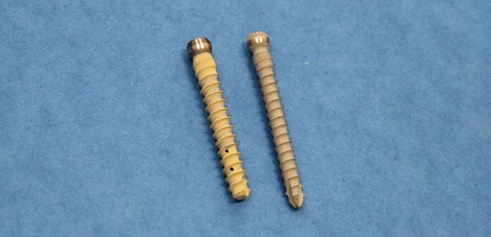 Специалисты ТПУ представили костный имплантат нового типа (3 фото)
