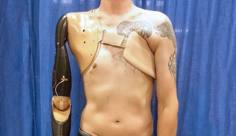 Создан протез, который управляется сигналами нервов спинного мозга (2 фото)