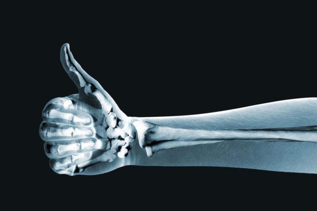 Картинки по запросу костный имплантат конечности