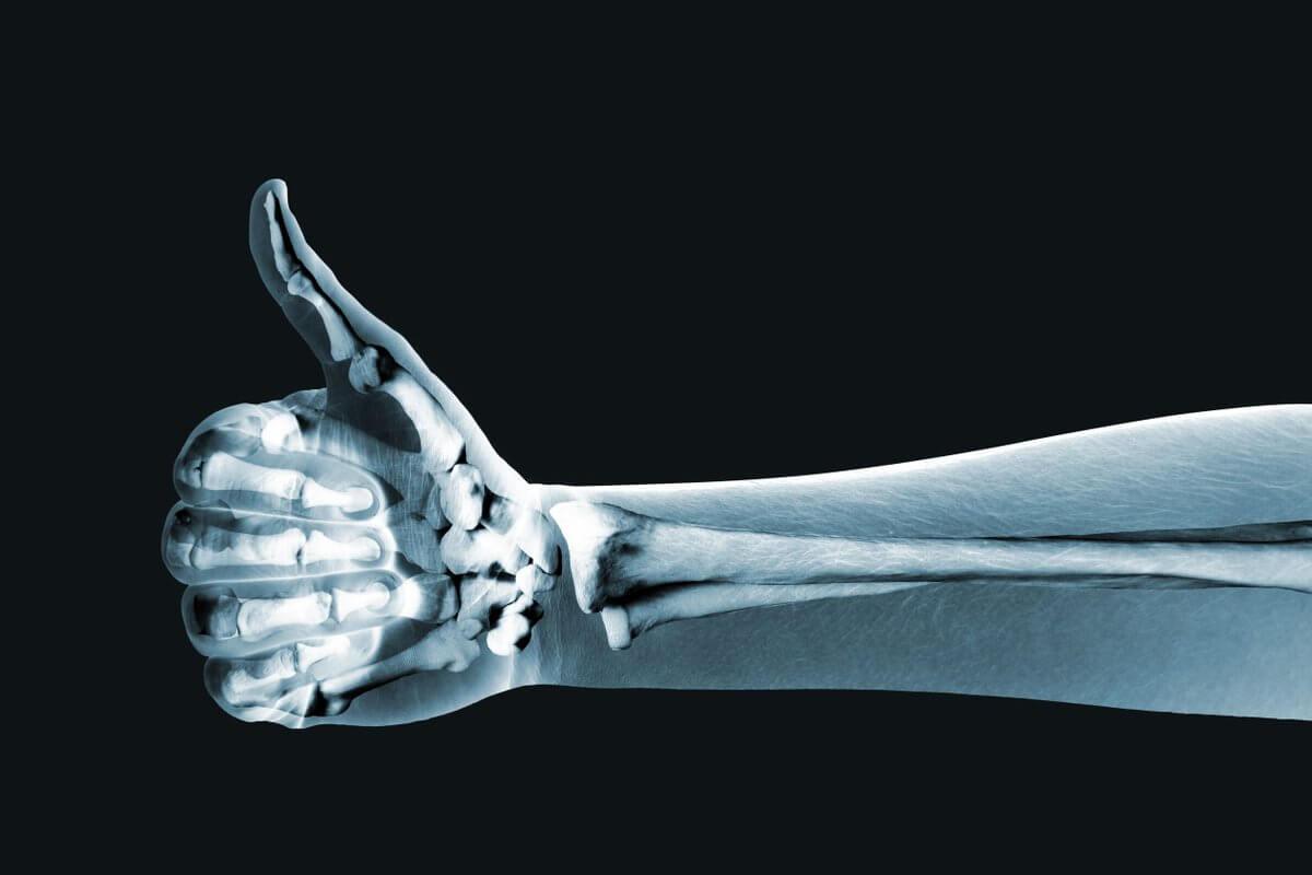 Российские ученые испытали костные имплантаты из сверхвысокомолекулярного полиэтилена