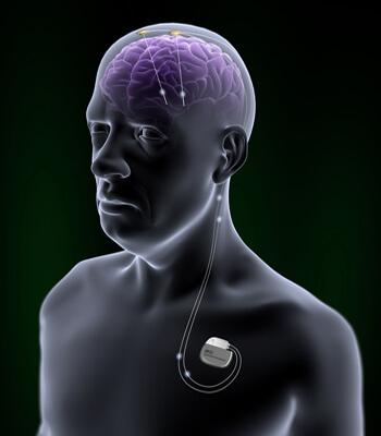 StJudeMedicalDBSStory - Neuralink Илона Маска. Часть четвертая: нейрокомпьютерные интерфейсы