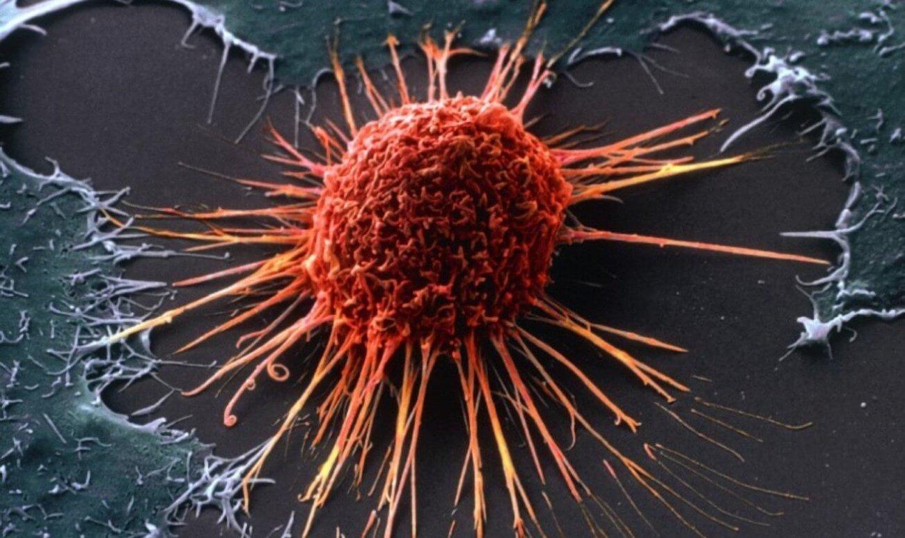 С помощью антибиотиков удалось заблокировать возможность раковых клеток получать энергию