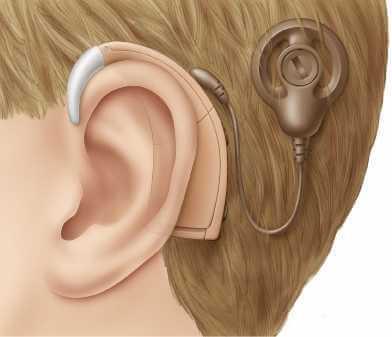 processor on ear - Neuralink Илона Маска. Часть четвертая: нейрокомпьютерные интерфейсы