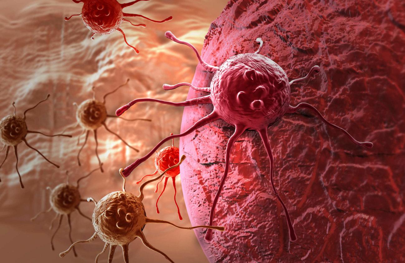 Рак болезнь фото человека