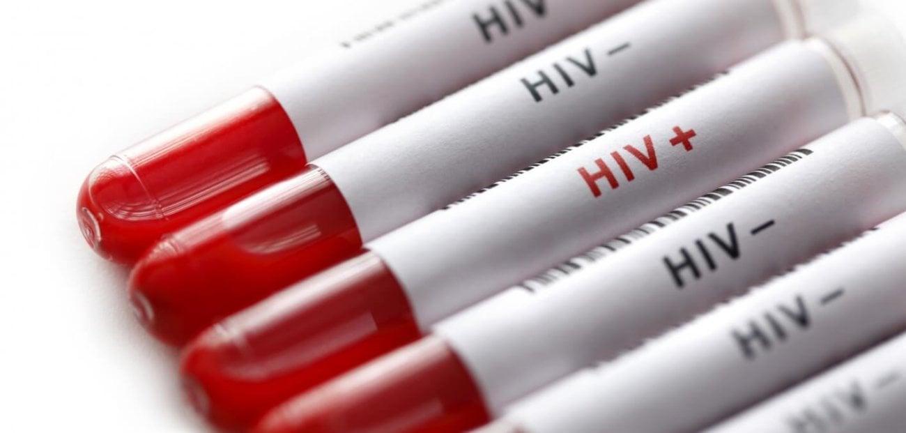 Разработана синтетическая молекула, убивающая дремлющий в клетках ВИЧ